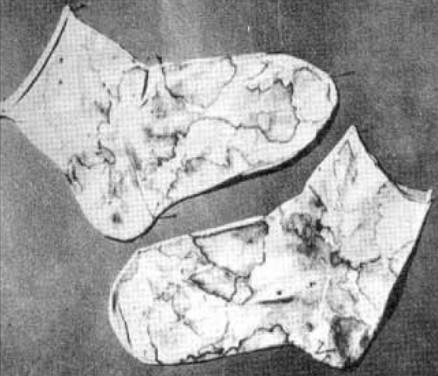 Chaussettes de Padre Pio tachées de sang